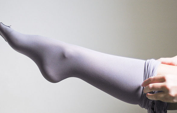 как убрать сосудистые сеточки на ногах