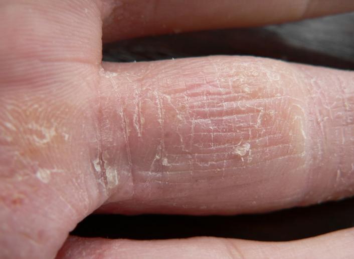 Тинедол крем от грибка на ногах аналог
