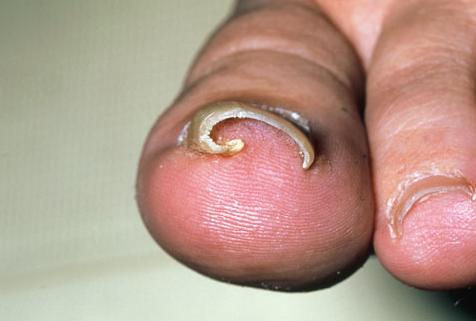 Чем отличается грибок ногтя от псориаза ногтях