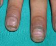 наросты под ногтями