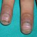 Наросты под ногтями: фото, причины, лечение