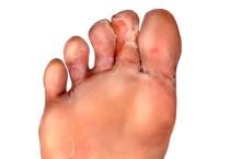 Грибок между пальцами ног лечение народными средствами