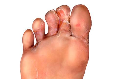 на ногах между пальцами грибок фото