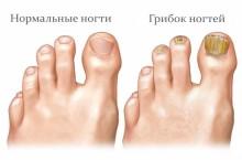 Чем опасен грибок ногтей