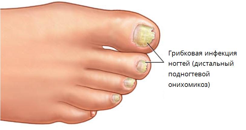 Микозан от грибка ногтей цена в новосибирске