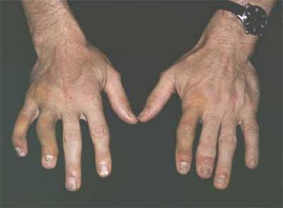 chto takoe psoriaticheskij artrit 2