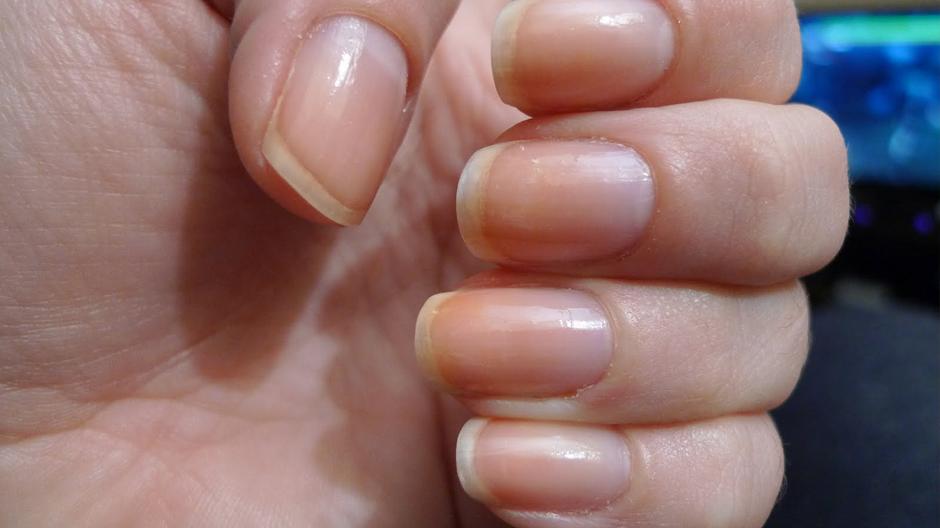 Центры по лечению грибка ногтей в москве