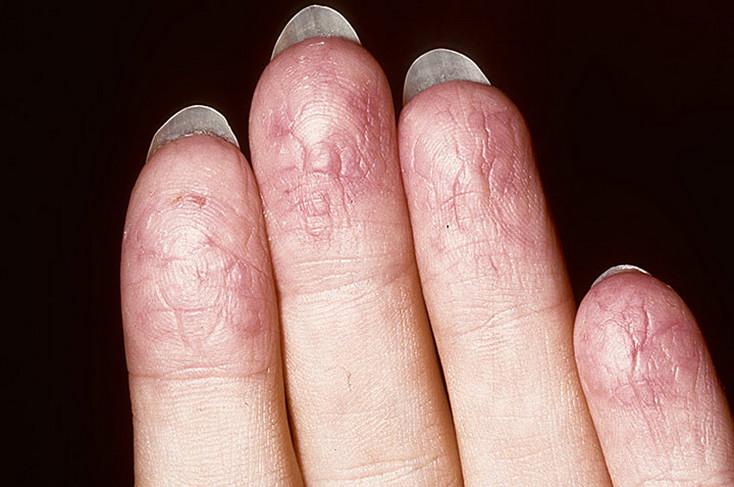Аллергия на солнце как выглядит (фото) симптомы лечение