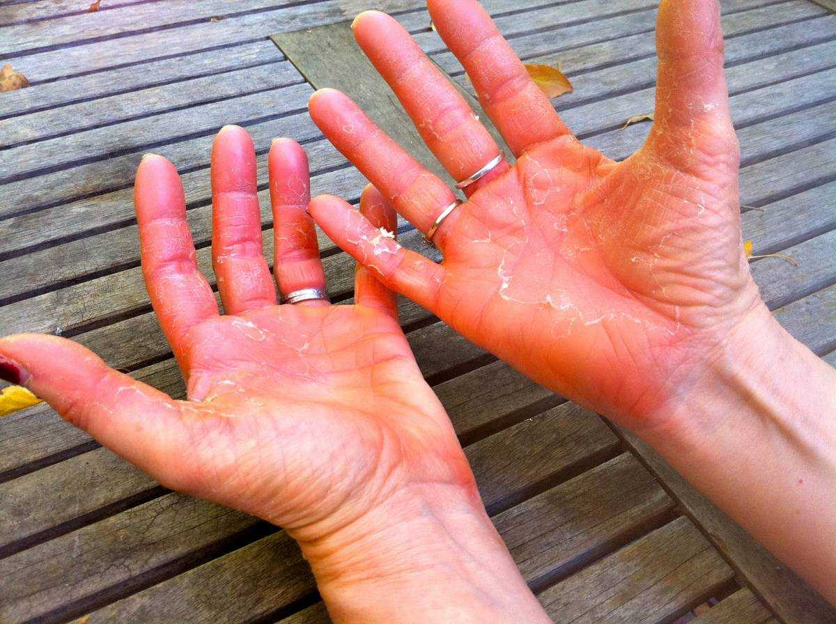 kak vyglyadit psoriaz na rukax (foto)