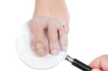 Крем от грибка ногтей