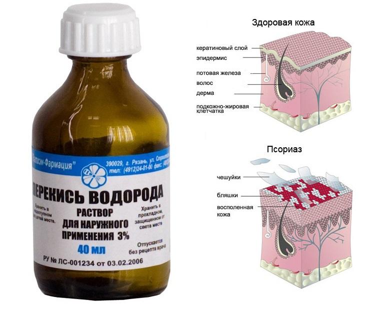 lechenie psoriaza perekisyu vodoroda