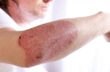Отличия псориаза от дерматита