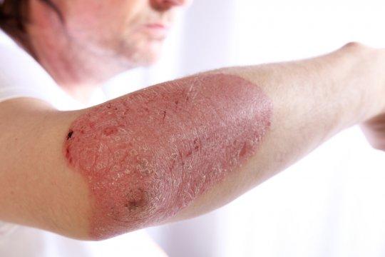 otlichiya psoriaza ot dermatita foto 1