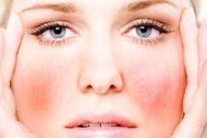 simptomy-urtikarnoj-sypi