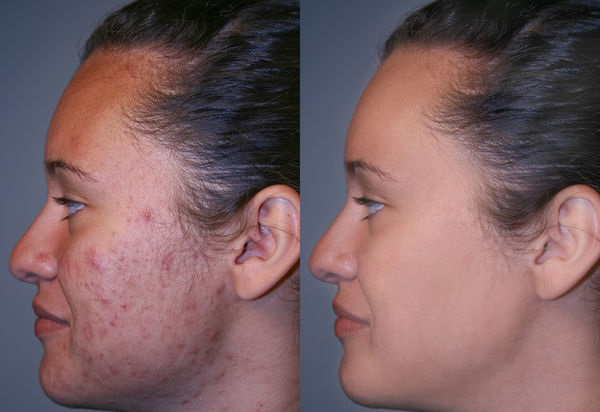 Маска от воспалений на лице в домашних условиях