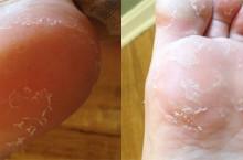 Возможные причины из-за которых облазит кожа на ступнях ног