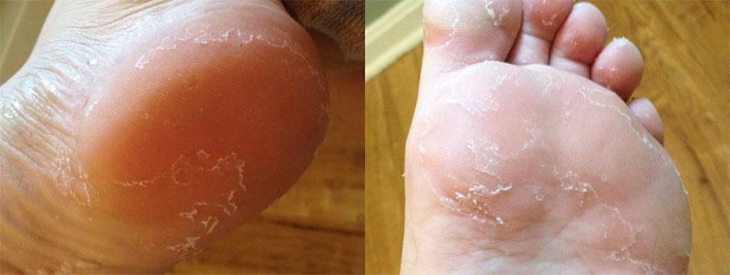 Лопающаяся кожа ступней