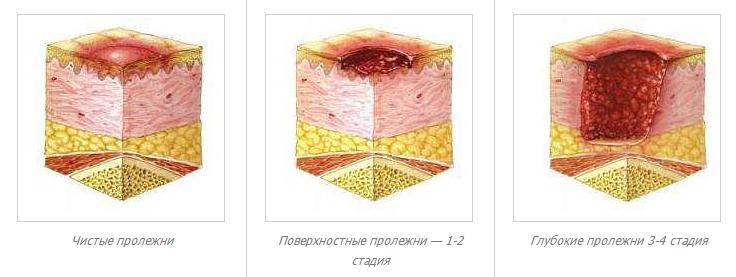 Камни в мочевом пузыре лечение фото