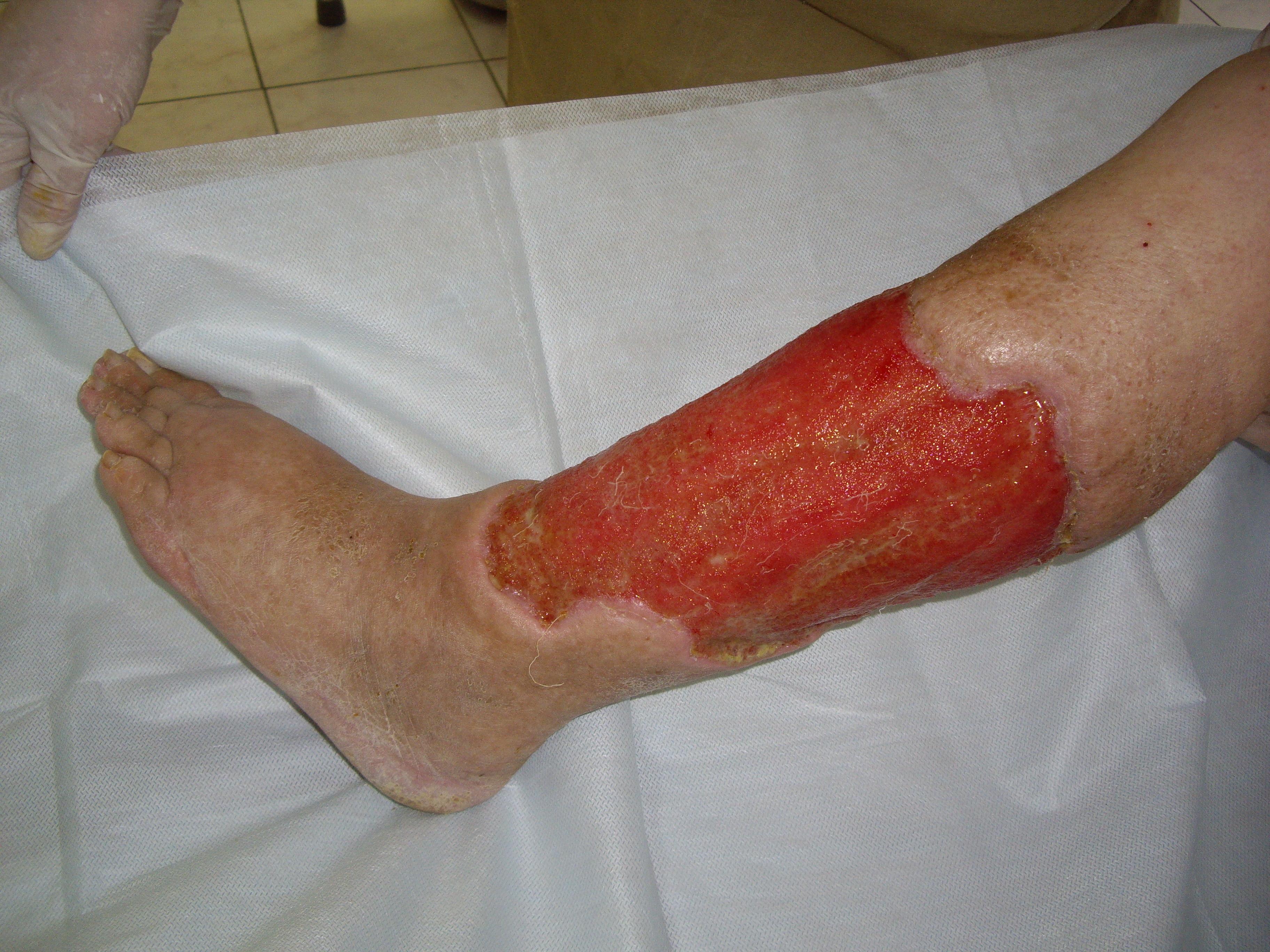 кожное заболевание фото рожа
