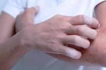 Что представляет собой Экзема на руках и её лечение