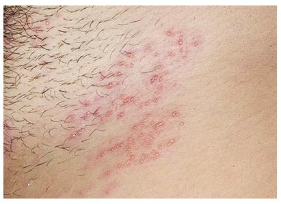 Герпес в интимной зоне: Симптомы, причины лечение