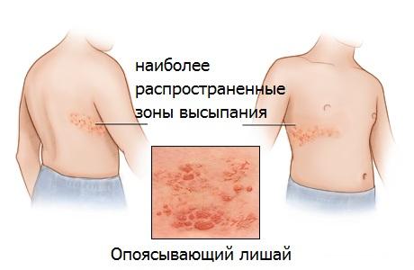 opoyasyvayushhij-gerpes-na-tele