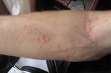Причины пузырчатых высыпаний на руках