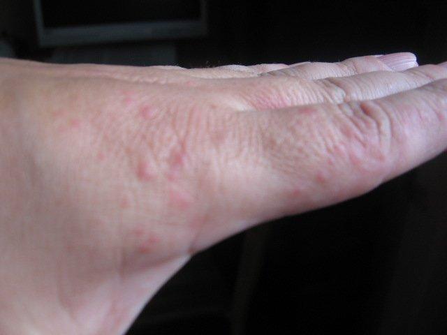 Аллергия на руках в виде пузырьков лечение