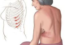 Опоясывающий герпес: Симптомы и лечение у взрослых