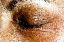 Нейродермит: симптомы и лечение