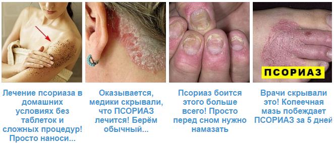 Псориаз ногтей - лечение фото симптомы диагностика
