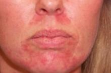 Правильное лечение себорейного дерматита на лице
