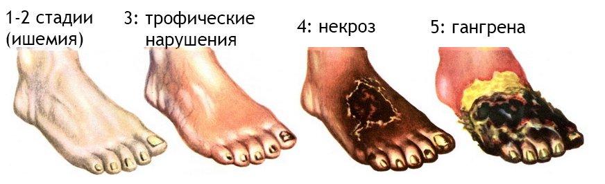 Боли в области рубца после кесарева сечения