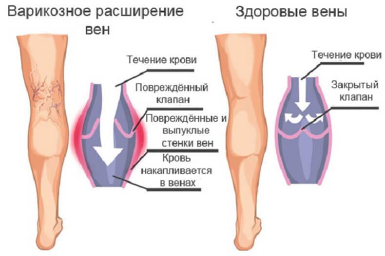 Как избежать варикоза на ногах