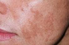 Почему появляются белые пятна на коже после загара и как лечить