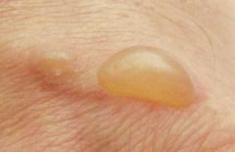 От чего надулся пузырь на коже