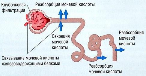 Мочевая кислота в крови повышена: причины симптомы и лечение
