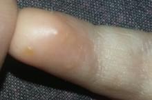 Почему появились водянистые пузырьки на коже?