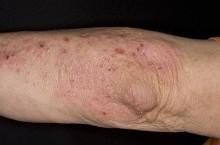 Атипичный дерматит, симптомы и способы лечение