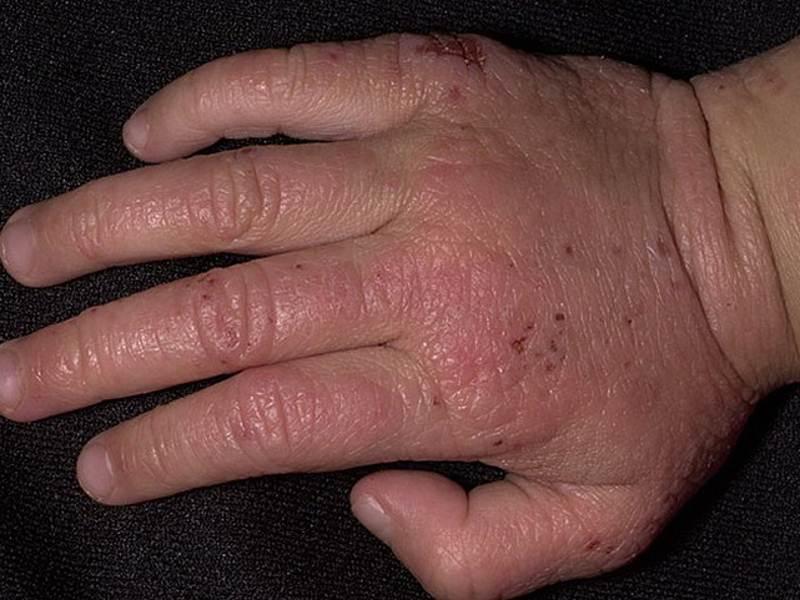 Атопический-дерматит-на-пальцах-рук