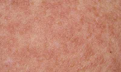 Атопический-дерматит-у-взрослых-фото