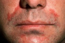 Пероральный дерматит на лице, симптомы и способы лечение
