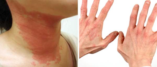 Токсико-аллергический дерматит