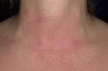 Все про аллергический дерматит, виды, симптомы и лечение