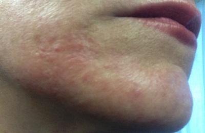 Головная боль при пневмонии у взрослых