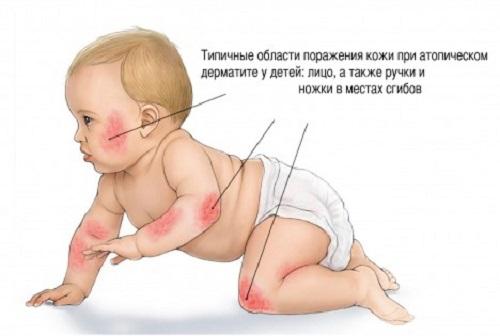 Atopicheskij-dermatit-u-detej