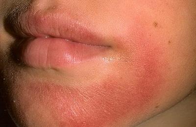 dermatit poslenervov