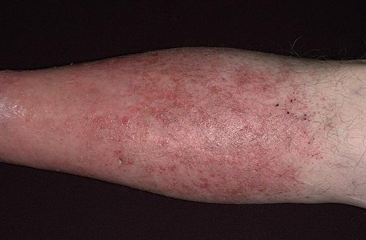 ekzematoznii-dermatit-3