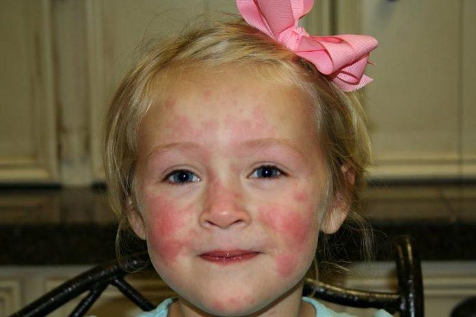 gribkovii-dermatit-u-devochki