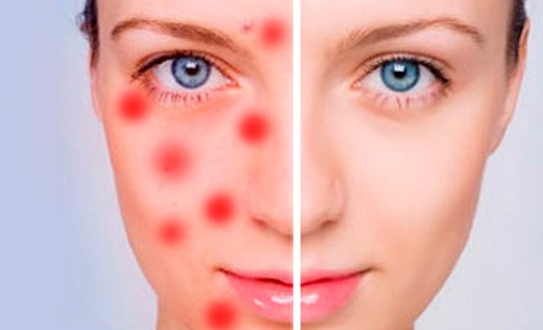 На лице появились подкожные прыщи, что делать и как лечить?